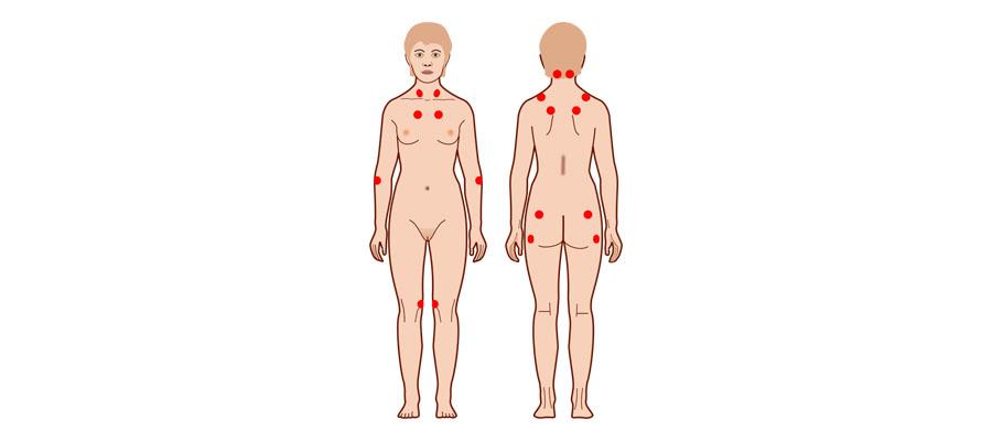 18 puntos diagnóstico fibromialgia